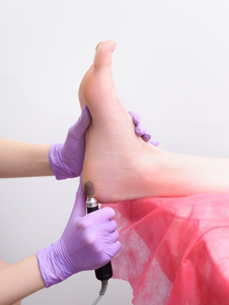 Foot Scrub Benefit - Lesser Calluses
