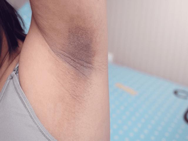 Dark Underarms Due to Melasma