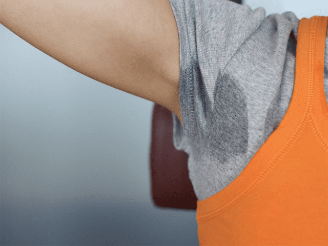 Dark Underarms Due To Friction Caused By Tight Clothes