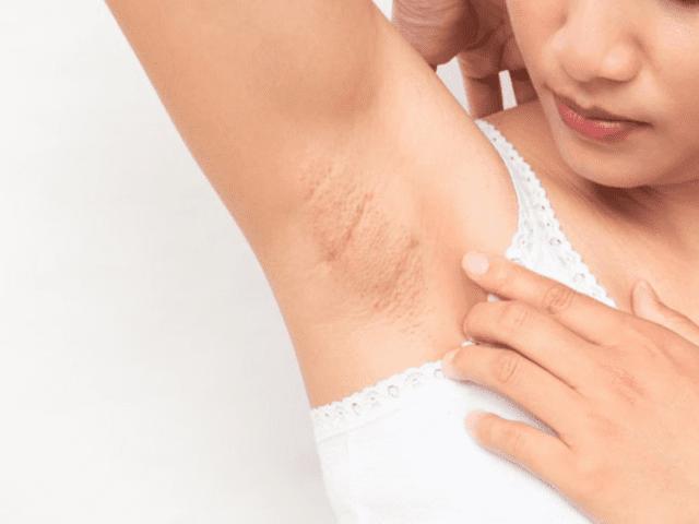 Accumulation Of Dead Skin Causing Dark Underarms